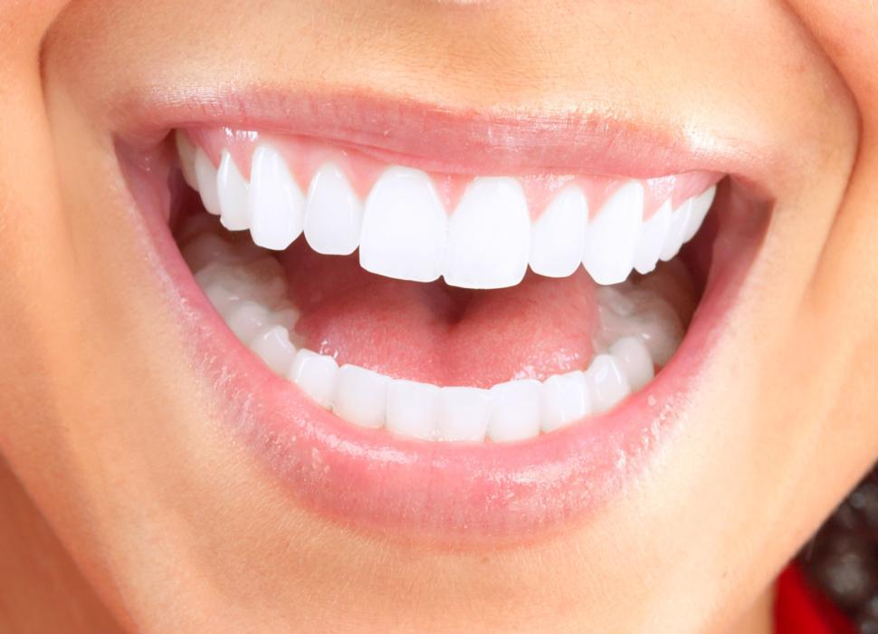 Bright Smile | Cosmetic Dentistry Randwick NSW