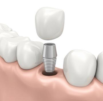 dental implants in randwick nsw | centennial smiles